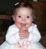 A week before she died our beautiful Sophia on her 1st birthday! I just LOVE looking at her beautiful face!!!!!